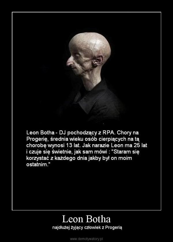 Leon Botha –  najdłużej żyjący człowiek z Progerią