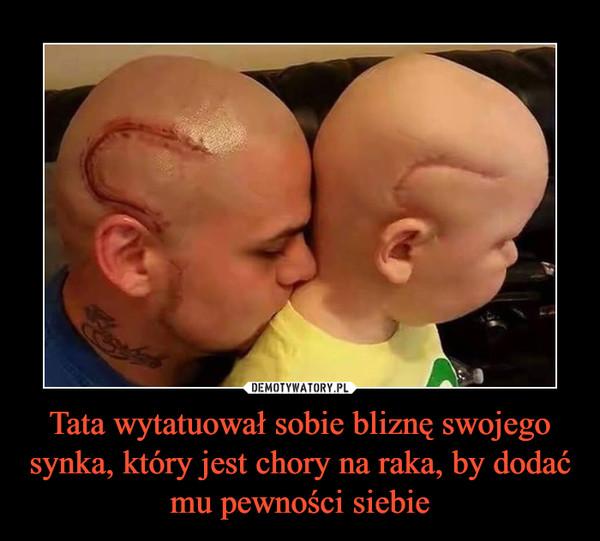 Tata wytatuował sobie bliznę swojego synka, który jest chory na raka, by dodać mu pewności siebie –