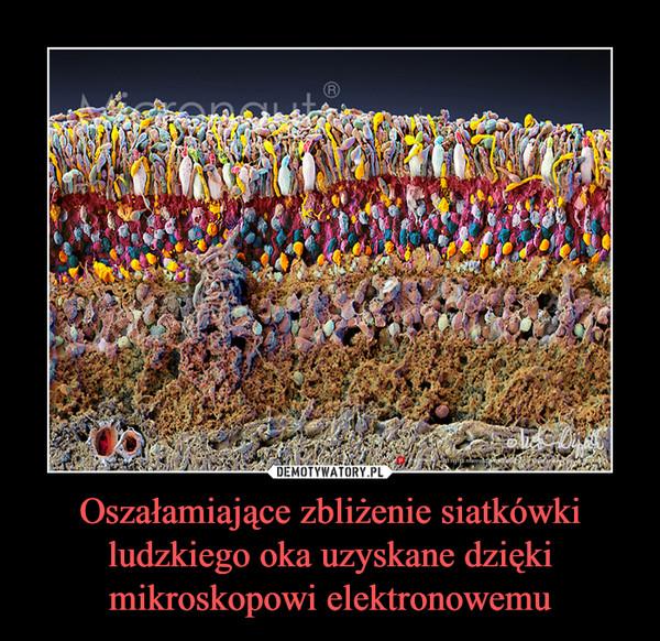 Oszałamiające zbliżenie siatkówki ludzkiego oka uzyskane dzięki mikroskopowi elektronowemu –