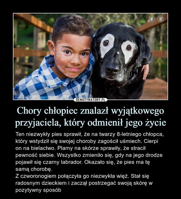 Chory chłopiec znalazł wyjątkowego przyjaciela, który odmienił jego życie – Ten niezwykły pies sprawił, że na twarzy 8-letniego chłopca, który wstydził się swojej choroby zagościł uśmiech. Cierpi on na bielactwo. Plamy na skórze sprawiły, że stracił pewność siebie. Wszystko zmieniło się, gdy na jego drodze pojawił się czarny labrador. Okazało się, że pies ma tę samą chorobę.Z czworonogiem połączyła go niezwykła więź. Stał się radosnym dzieckiem i zaczął postrzegać swoją skórę w pozytywny sposób