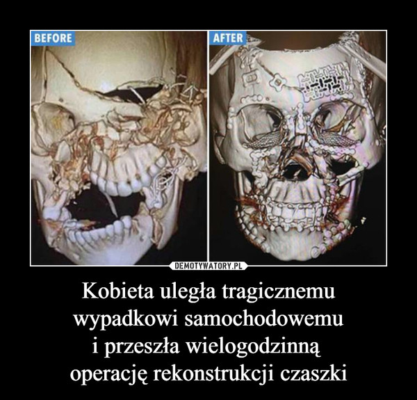 Kobieta uległa tragicznemuwypadkowi samochodowemui przeszła wielogodzinną operację rekonstrukcji czaszki –