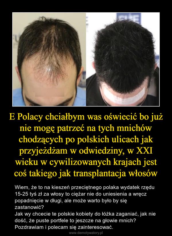 E Polacy chciałbym was oświecić bo już nie mogę patrzeć na tych mnichów chodzących po polskich ulicach jak przyjeżdżam w odwiedziny, w XXI wieku w cywilizowanych krajach jest coś takiego jak transplantacja włosów – Wiem, że to na kieszeń przeciętnego polaka wydatek rzędu 15-25 tyś zł za włosy to ciężar nie do uniesienia a wręcz popadnięcie w długi, ale może warto było by się zastanowić?Jak wy chcecie te polskie kobiety do łóżka zaganiać, jak nie dość, że puste portfele to jeszcze na głowie mnich?Pozdrawiam i polecam się zainteresować.