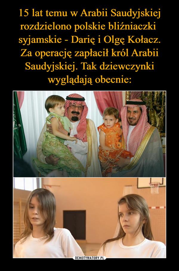 15 lat temu w Arabii Saudyjskiej rozdzielono polskie bliźniaczki  syjamskie - Darię i Olgę Kołacz. Za operację zapłacił król Arabii Saudyjskiej. Tak dziewczynki wyglądają obecnie: