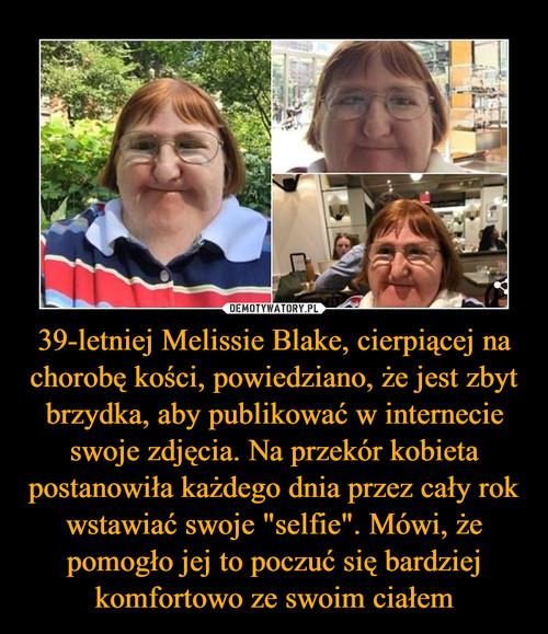 """39-letniej Melissie Blake, cierpiącej na chorobę kości, powiedziano, że jest zbyt brzydka, aby publikować w internecie swoje zdjęcia. Na przekór kobieta postanowiła każdego dnia przez cały rok wstawiać swoje """"selfie"""". Mówi, że pomogło jej to poczuć się bardziej komfortowo ze swoim ciałem"""
