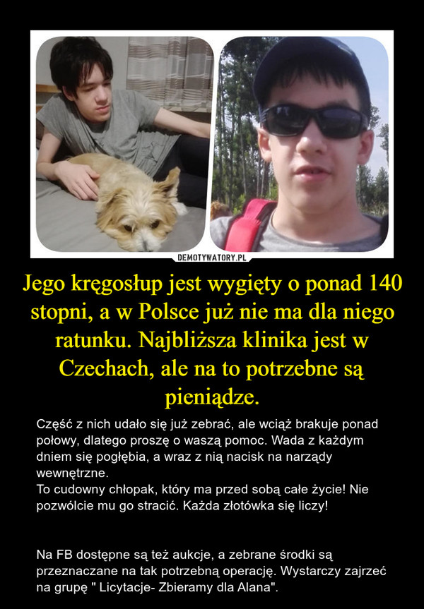 """Jego kręgosłup jest wygięty o ponad 140 stopni, a w Polsce już nie ma dla niego ratunku. Najbliższa klinika jest w Czechach, ale na to potrzebne są pieniądze. – Część z nich udało się już zebrać, ale wciąż brakuje ponad połowy, dlatego proszę o waszą pomoc. Wada z każdym dniem się pogłębia, a wraz z nią nacisk na narządy wewnętrzne.To cudowny chłopak, który ma przed sobą całe życie! Nie pozwólcie mu go stracić. Każda złotówka się liczy!Na FB dostępne są też aukcje, a zebrane środki są przeznaczane na tak potrzebną operację. Wystarczy zajrzeć na grupę """" Licytacje- Zbieramy dla Alana""""."""