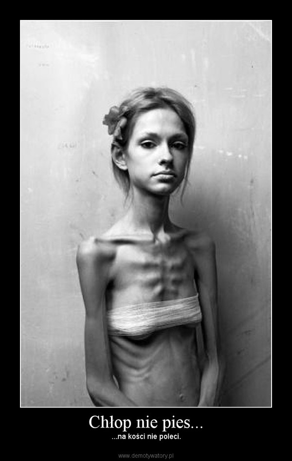 an examination of the epidemic of anorexia nervosa Statistics about eating disorder in general, and specific information about anorexia nervosa, bulimia nervosa, binge eating disorder, and many others.