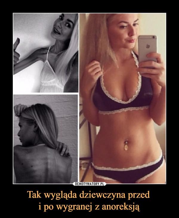 anoreksja jak schudnąć